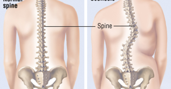 Chiropractic: Slowing the Progression of Scoliosis image