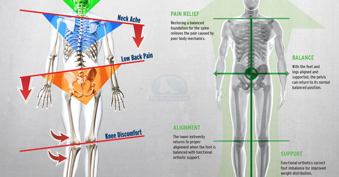 Do You Have Plantar Fasciitis? Bunions? Here's How Chiropractic Can Help image