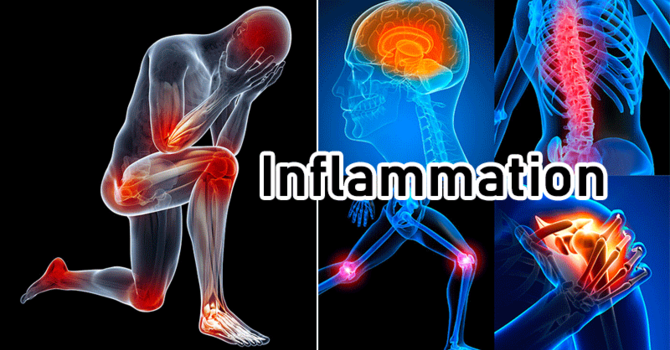 Handling Inflammation In Your Body image