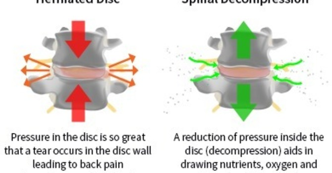 Can Spinal Decompression Be The Missing Piece? image
